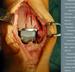 Revmatochirurgie nohy