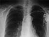 Zobrazovací diagnostika hrudníku